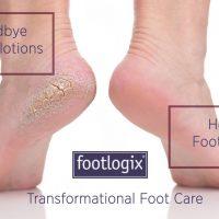 Nieuwe voetbehandeling: Footlogix!